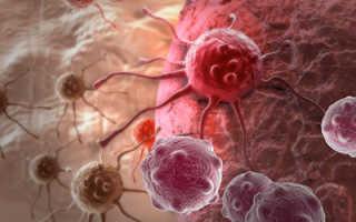 Полезные продукты при онкологии