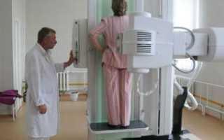 Рентген легких или флюорография что вреднее
