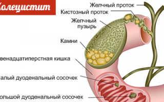 Полезные продукты при холецистите